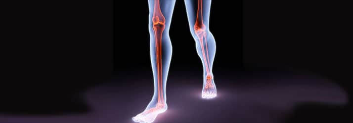 Medical Spa Bentonville AR Joint Pain